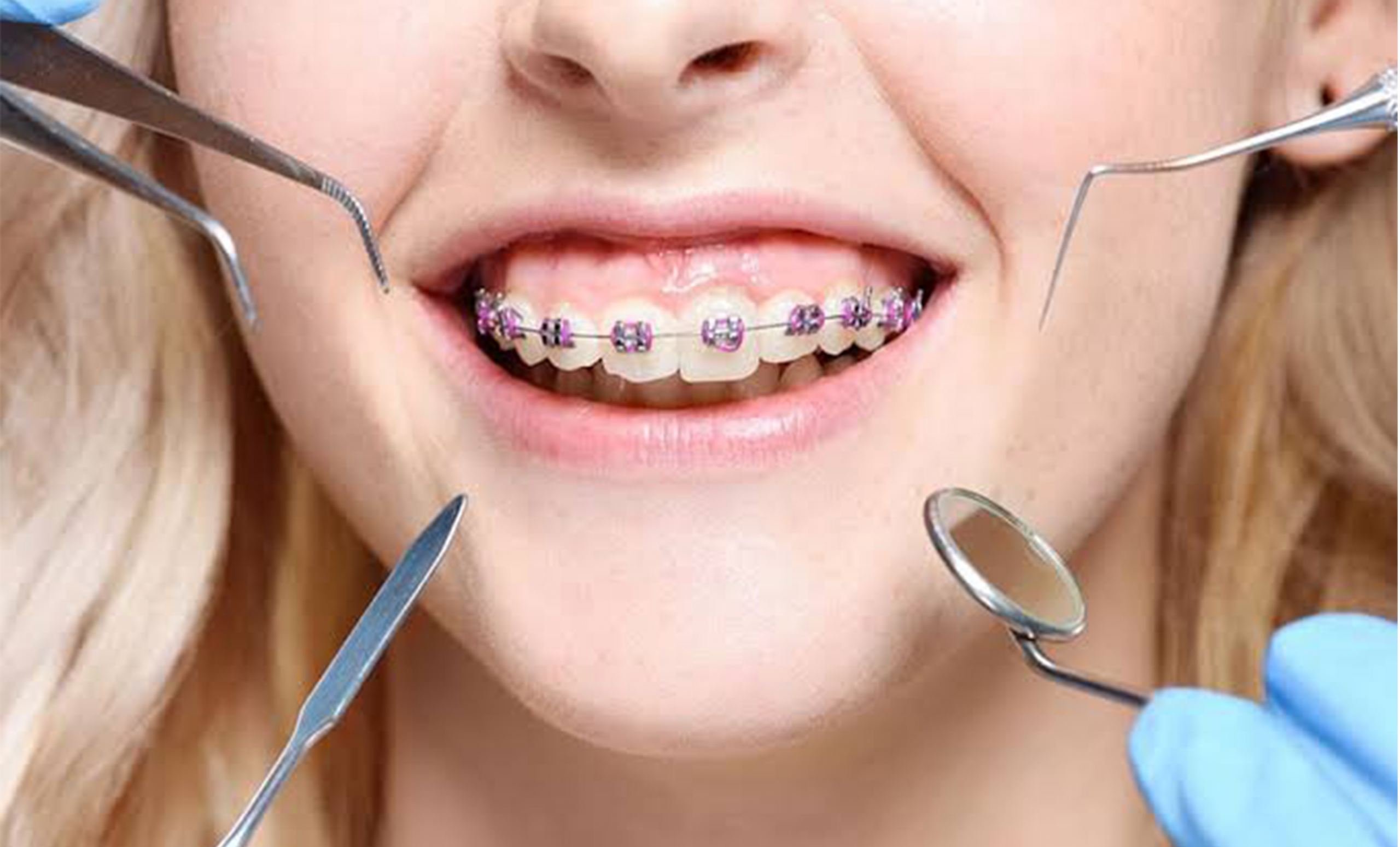New Equipment Means More Treatment Options – Springdale Orthodontist Dr. Boyd Whitlock
