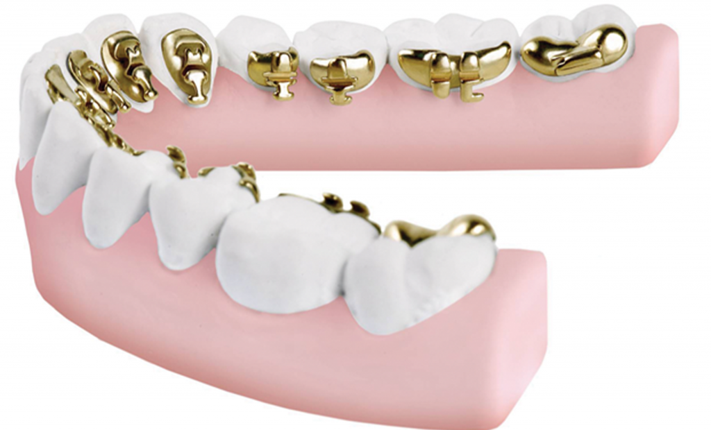 teeth model having indirect bonding