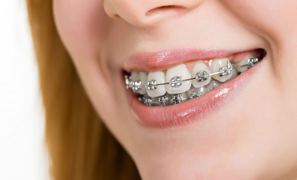 a woman wearing braces