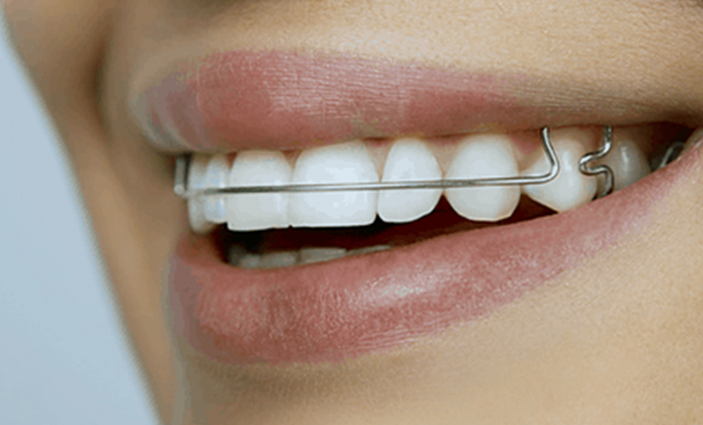 a person having retainers