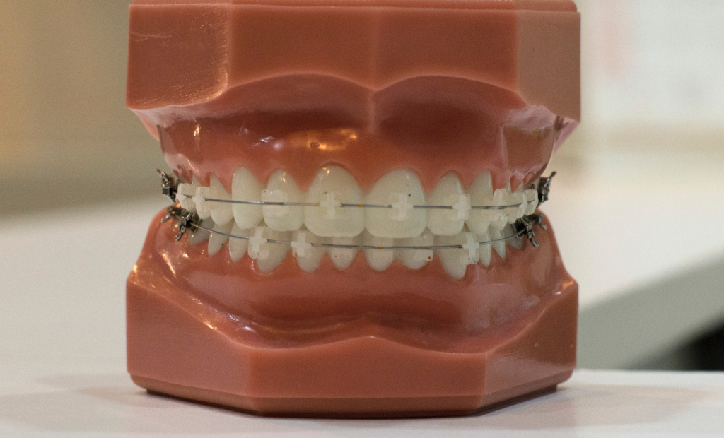teeth model with retainer