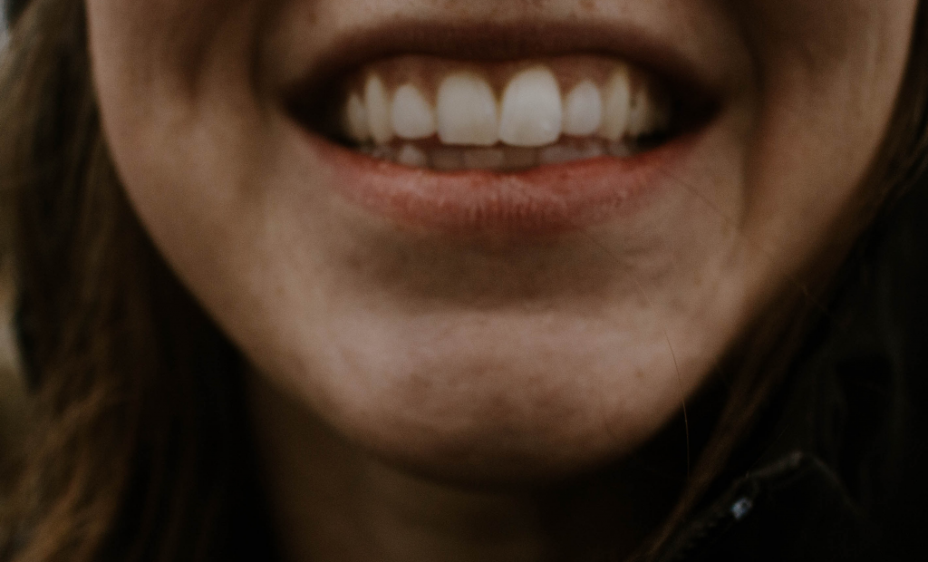 person with white teeth