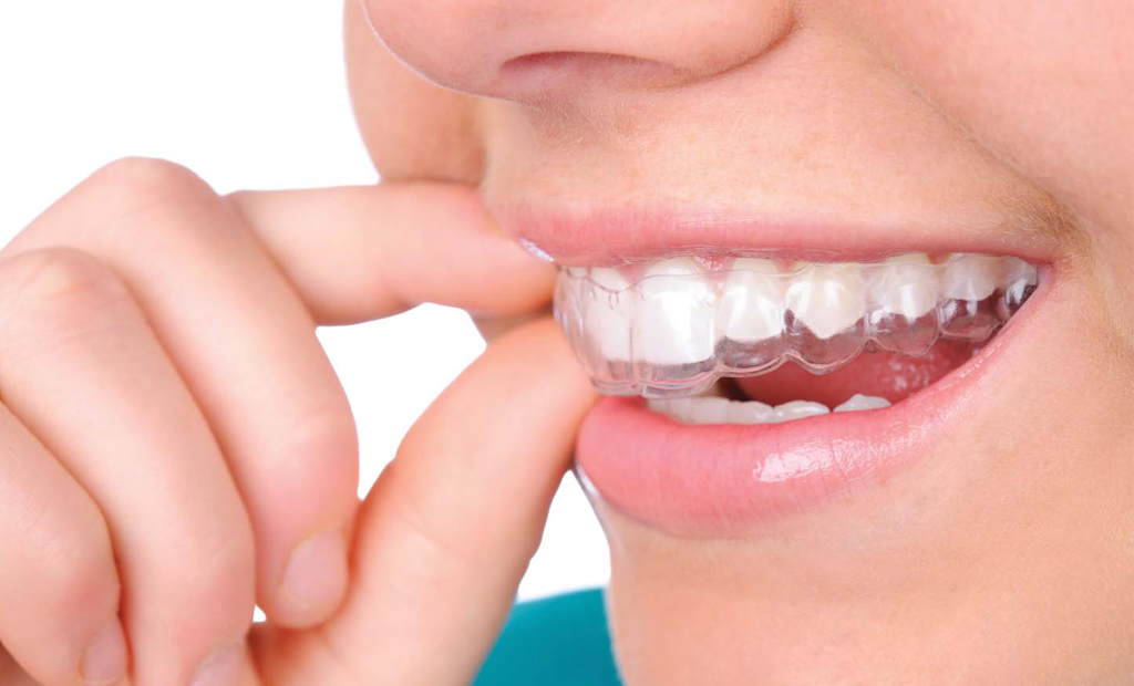 person wearing clear aligners