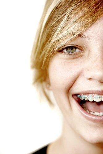 besides straight teeth