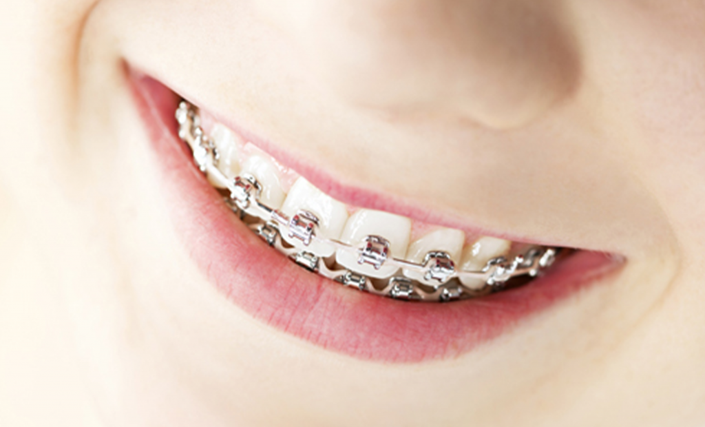 person wearing braces
