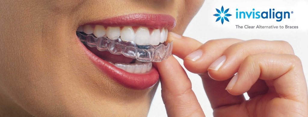 person wearing invisalign