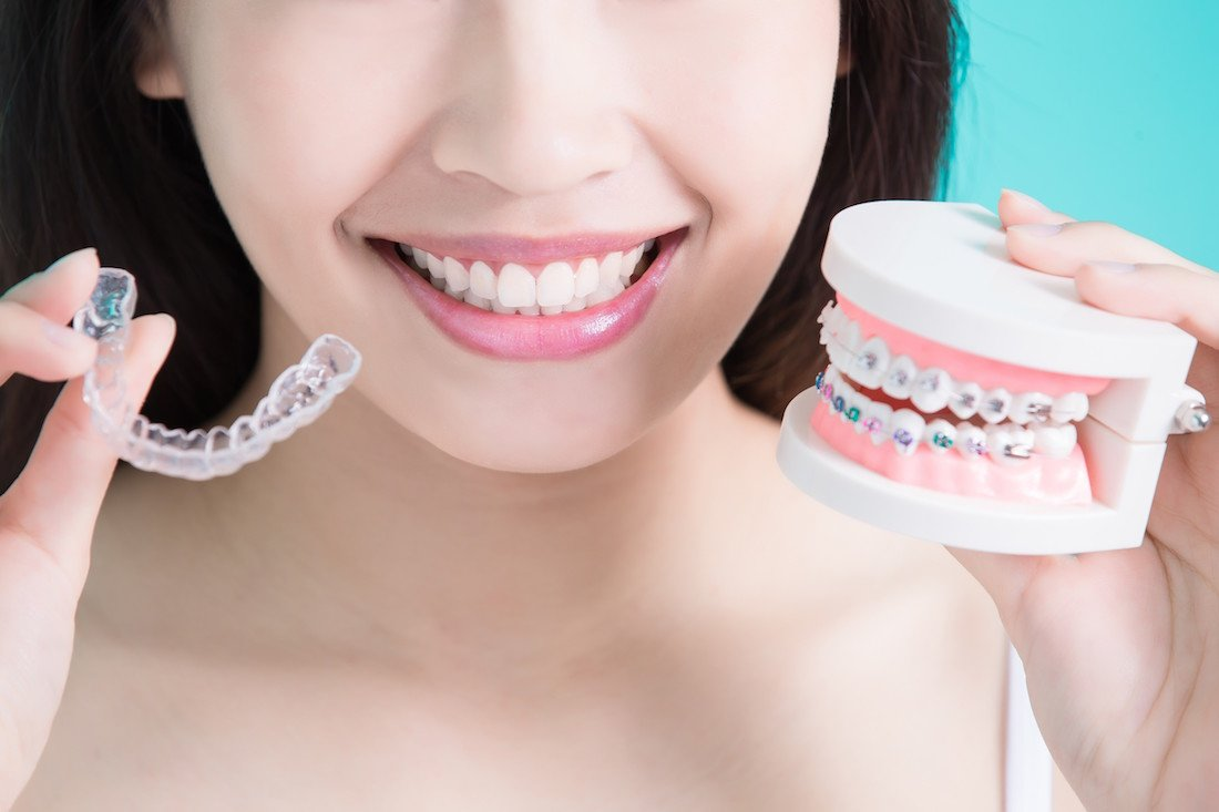 Invisalign vs Traditional Braces: Which Option is Best?