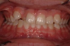 teeth with disorder
