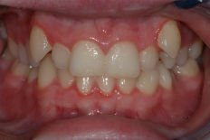 teeth misalignment