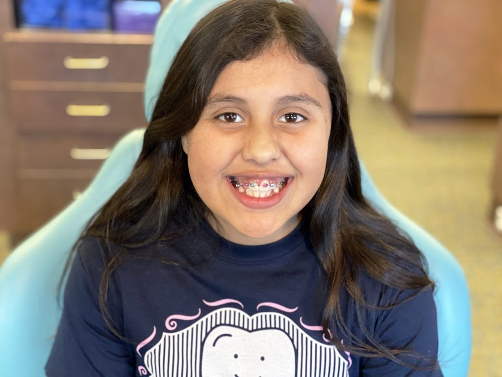 a girl showing off her teeth with braces